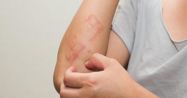 Il Coronavirus si vede sulla pelle! Gli esperti ci spiegano come capire se si è malati di COVID19