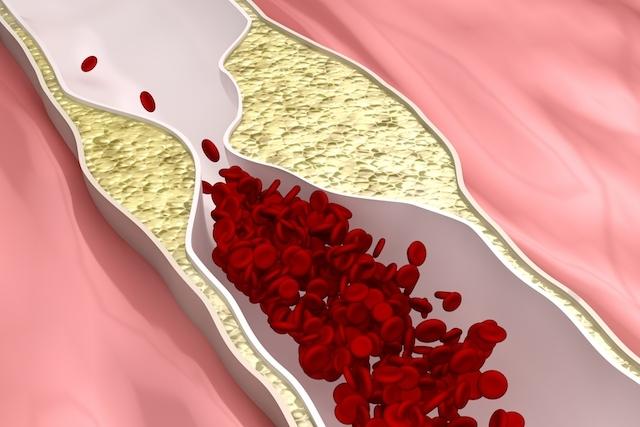 Doença arterial coronariana: o que é, sintomas e tratamento