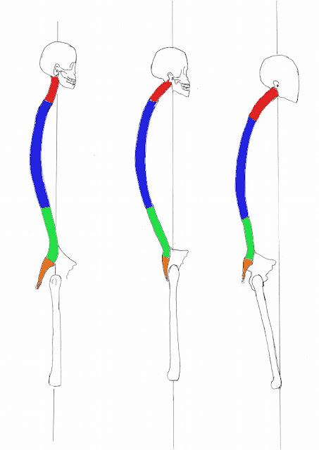 足裏の痛み 足底腱膜 整体