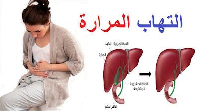 علاج التهاب المراره الحاد