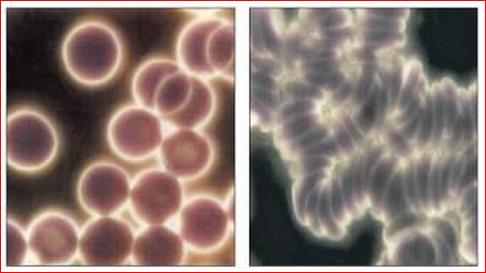 Kangen Water Ionizer dapat Merubah Darah Anda dalam 12 Menit
