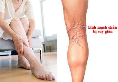 Điều trị suy giãn tĩnh mạch chân bằng Trái Nhàu (Noni)