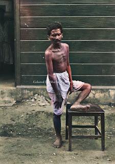 si mbelin menderita cacar dari desa deram di rumah sakit batak institute kabanjahe