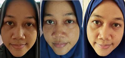 before after pemakaian acne serum jerawat berkurang