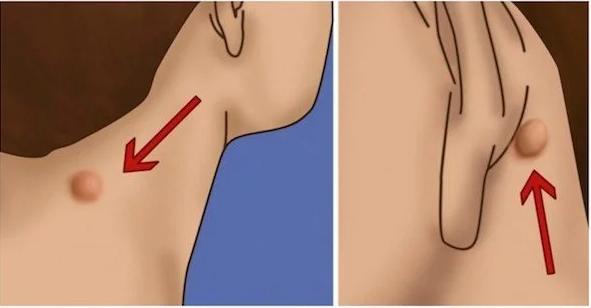 epidermoid cysts