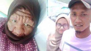 Wajah Berubah Drastis Selama Hamil, Wanita Ini Dinyinyiri Tetangga, Suami Tetap Memuji 'Kamu Cantik'