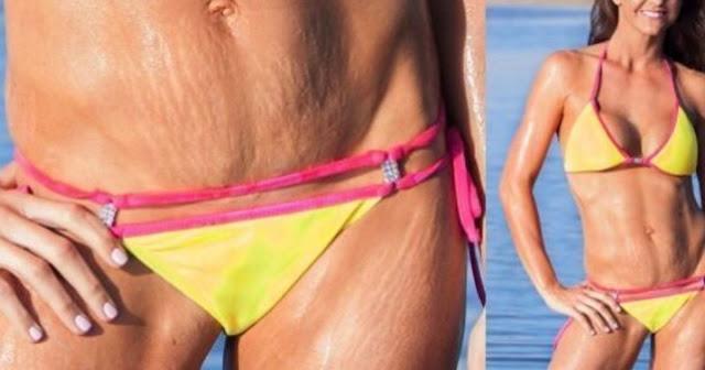 Trucs et astuces pour porter un bikini sans faire paraître ses vergetures