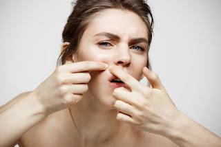 Acne e problemas de pele