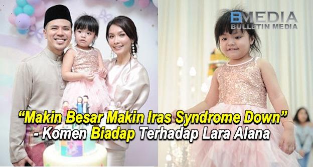 """Makin Besar Makin Iras Syndrome Down"" - Gambar Birthday Lara Alana Dicemari Kutukan Mulut Puaka"