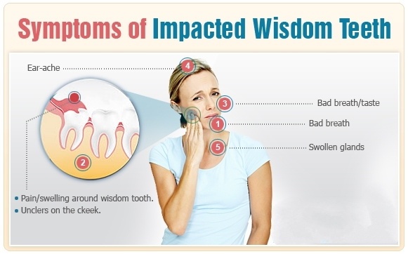Wisdom teeth removal in Thangam's Dental Clinic