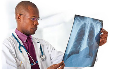 Pleural Mesothelioma Symptoms and Diagnosis