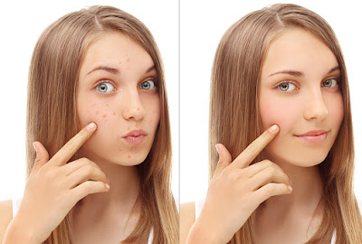 before and after pimples