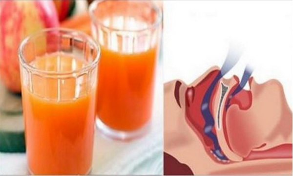 This Drink Will Cure You From Snoring After 5 Days Of Consuming! Guaranteed!