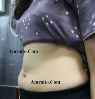 Navel piercing allergy