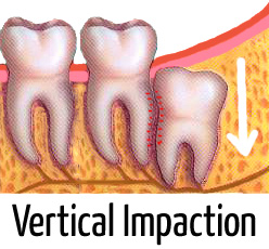 infected wisdom tooth pictures (vertical impaction)