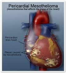 Pericardial Mesothelioma