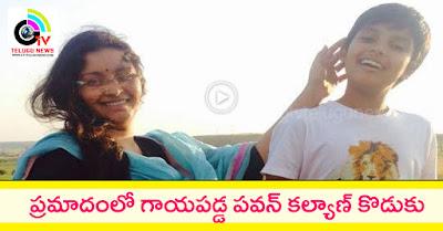 Power Star Pawan Kalyan's Son Injured, Pawan Kalyan's Son Akira Injured