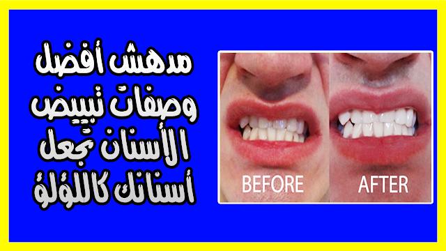مدهش أفضل وصفات تبييض الأسنان تجعل أسنانك كاللؤلؤ