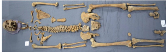 The skeleton of the 35-39 years old man