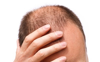 What are the causes of sudden hair loss?