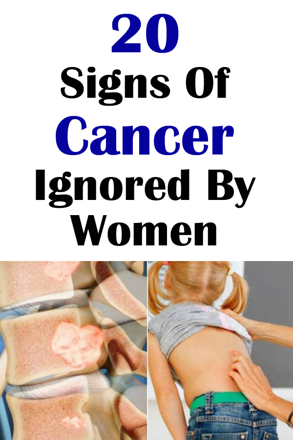 20 Signs Of Cancer Ignored By Women