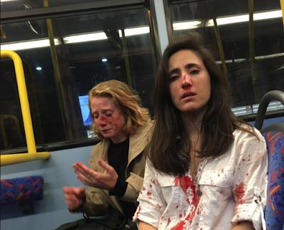O casal agredido