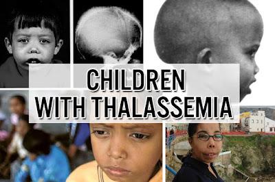 Penderita Penyakit Thalasemia