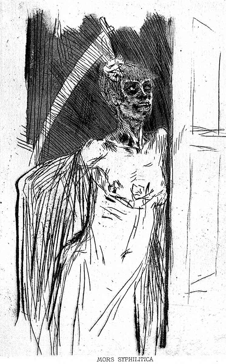 Felician Rops, Mors Syphilitica, syphilis was not treatable until the 1940s