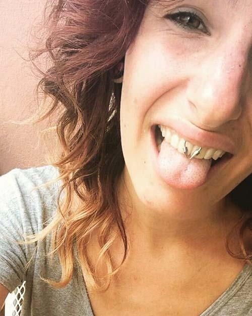 sivri uçlu smiley piercing
