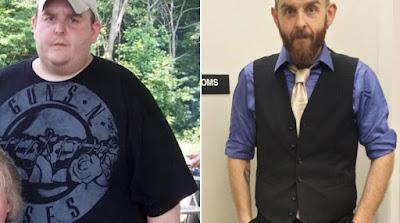 ΗΠΑ: Έχασε 136 κιλά επειδή νόμισε ότι ένας πόνος στο στήθος ήταν έμφραγμα
