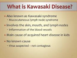 image result for what is kawasaki disease