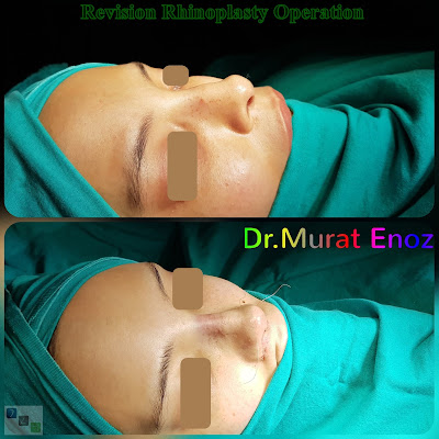 Revision Rhinoplasty Operation in Istanbul, Revision Nose Job Turkey