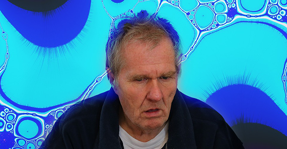 A man with dementia