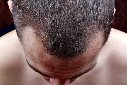 Modern methods for treating early baldness