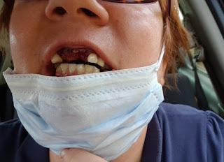 Surveillante de prison à Val-de-Reuil, la Gaillonnaise a perdu les dents sous les coups d'un « fiché psy »
