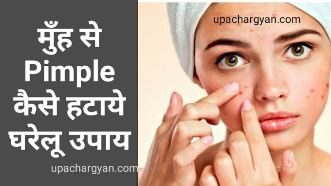 पिम्पल्स कैसे दूर करे -Pimple Hatane Ke Upay In Hindi