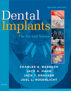 Dental Implants The Art and Science 2nd Edition