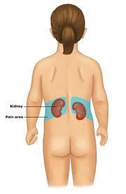 Pregnancy Kidney Pain