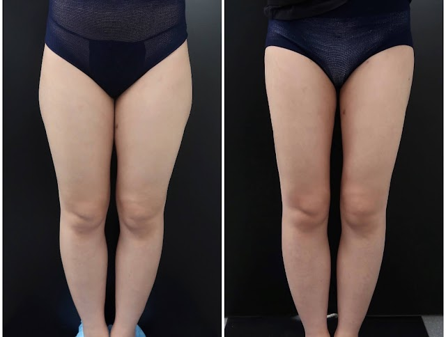 Liposuction And What You Should Know