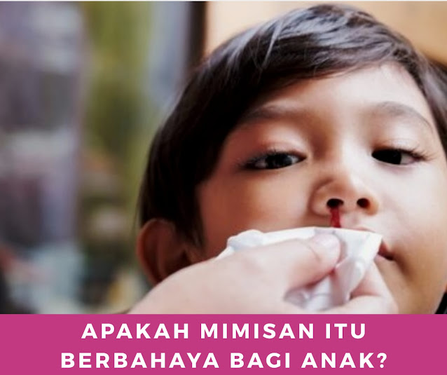 Apakah Mimisan Itu Berbahaya Bagi Anak ?