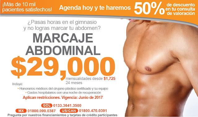 marcaje abdominal cirugia plastica masculina lipoescultura hombres lavadero abdomen precio costo promocion guadalajara