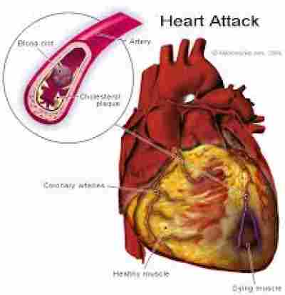 Related searches Sleep apnea does not cause cardiovascular disease Can sleep apnea cause low ejection fraction Sleep apnea right sided heart failure Does heart disease cause sleep apnea Can sleep apnea cause an enlarged heart Causes of sleep apnea Can heart damage from sleep apnea be reversed Obstructive sleep apnea and cardiovascular disease in adults