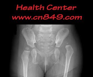 Congenital Dislocation Of The Hip CDH