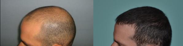 زراعة الشعر في جدة تقنيات حديثة وأمنة