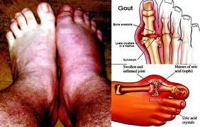 penyakit asam urat