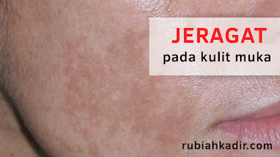 Jeragat pada kulit muka