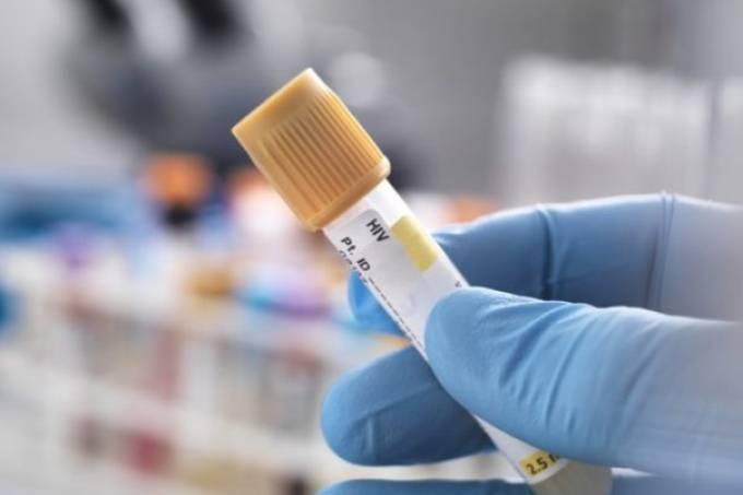 Cientistas brasileiros descobrem superterapia que pode curar a AIDS