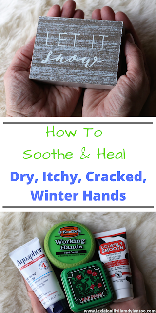 How To Soothe & Heal Dry, Itchy, Cracked, Winter Hands