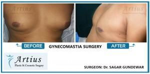 Gynecomastia Surgery in Navi Mumbai