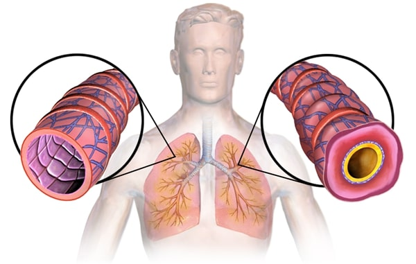 Cara Alami Untuk Mencegah Asma